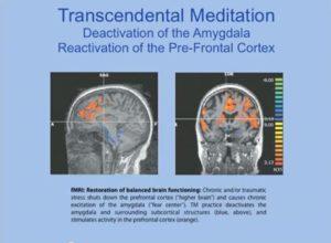 amygdala and TM